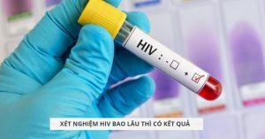 xet nghiem hiv bao lau thi co ket qua