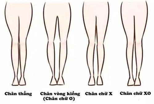 Chan bi cong lam sao cho thang